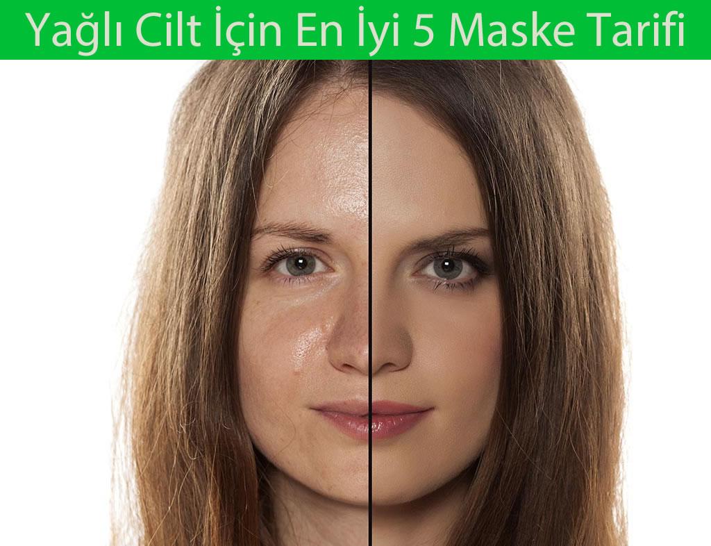 Yağlı Cilt İçin En İyi 5 Maske Tarifi